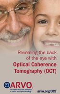 Sharing the sight-saving impact of optical coherence tomography