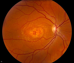 Color fundus photography image from a Stargardt disease patient showing a central macular scar with some pigmentary changes and surrounding perimacular flecks.