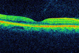 DME, as viewed by optical coherence tomography (OCT). The two images were taken before (Top) and after anti-VEGF treatment (Bottom). The dip in the retina is the fovea, a region of the macula where vision is normally at its sharpest. Note the swelling of the macula and elevation of the fovea before treatment.