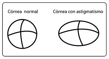 Cornea both Normal and Astigmatismo
