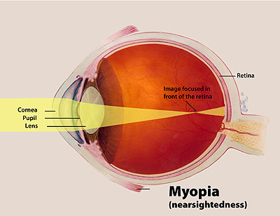 facts about myopia | national eye institute, Cephalic Vein