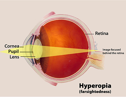 A color illustration of hyperopia highlighting the cornea, pupil and lens, and the way an image focuses behind the retina.
