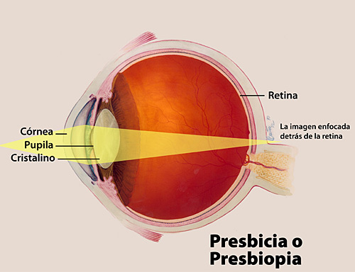 0f53ce83ad Información Sobre La Presbicia o Presbiopía | National Eye Institute