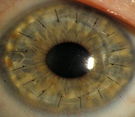 A full thickness corneal transplant, with the sutures still visible.