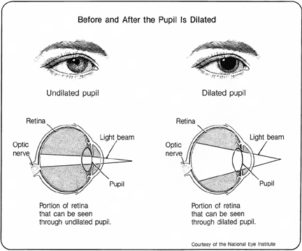 Diagram of the Eye Before and After Dilated Eye Exam.