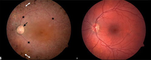 Photograph of the retina of a patient with Usher syndrome (left) compared to a normal retina (right).