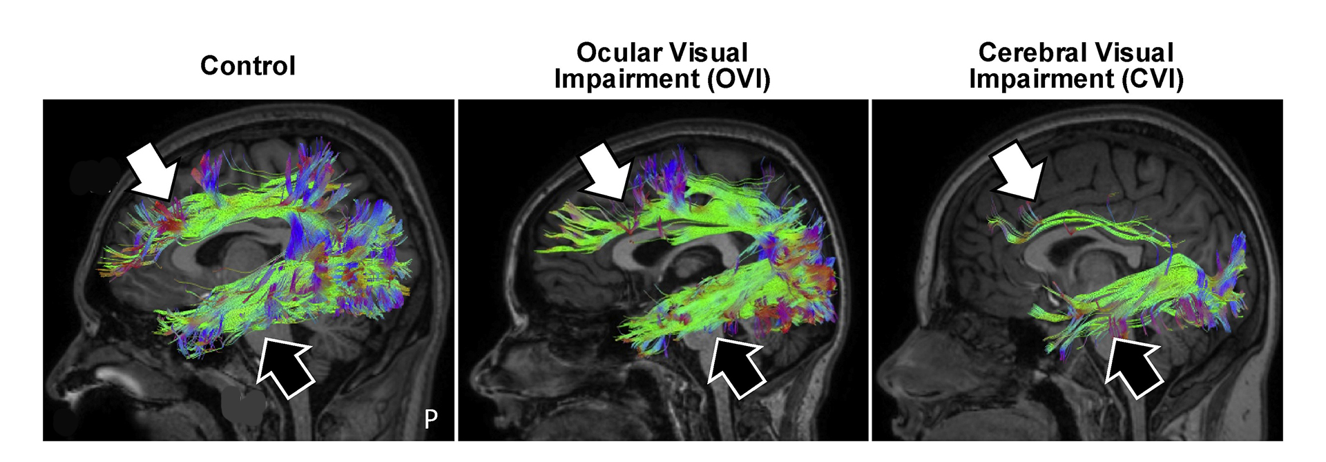 Diffusion based imaging reveals that dorsal (white arrow) and ventral (black) visual processing streams remain intact in people with ocular causes of visual impairment, but are markedly reduced in individuals with CVI (particularly the dorsal stream implicated with spatial processing). 9