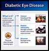 Diabetic Eye Disease Infographic Thumbnail