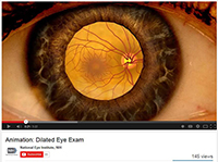 New Dilated Eye Exam Animation Video Available From NEI