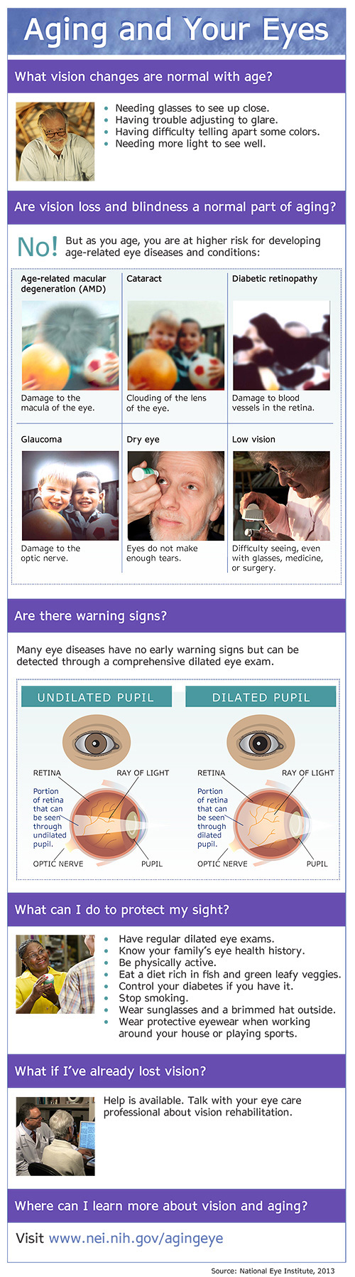 Infographic on the Aging Eye