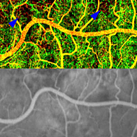 Phase-variance OCT (top) can reveal blood vessels over the retina (yellow and red) and underneath it in a layer of tissue called the choriocapillaris (green). In this person with AMD, it also reveals areas of choriocapillaris loss (blue arrowheads). This level of detail isn't seen by standard fluorescein angiography (bottom). Republished from Kim et al., PNAS.