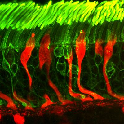 rods and cones: photoreceptors in a human retina