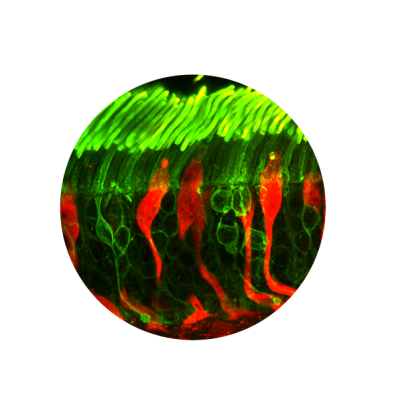 Photo of retinal cell