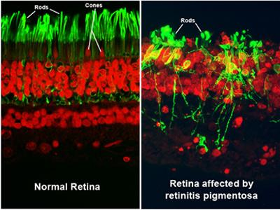 "The image on the left is labeled ""Normal retina,"" and shows green rods and red cones. The image on the right is labeled ""Retina affected by retinitis pigmentosa,"" and shows green rods that have broken down."