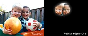 "A simulation of retinitis pigmentosa. The photo on the left is labeled ""Normal Vision."" It shows 2 young boys holding balls. The photo on the right is labeled ""Retinitis Pigmentosa"" and shows the same image of 2 young boys, but only the portion of their faces in the middle of the photo is visible."