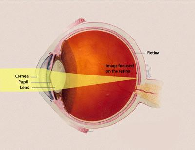"An illustration of the eye shows light passing through the cornea, pupil, and lens to the retina. A label reads ""Image focused on the retina."""