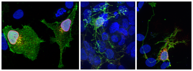 Stained microscope images of CEK293 cells overexpressing Brn3 transcriptional target genes