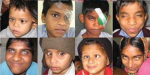 Eight children who are part of the Project Prakash program.