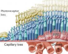Diagram of RPE cell loss