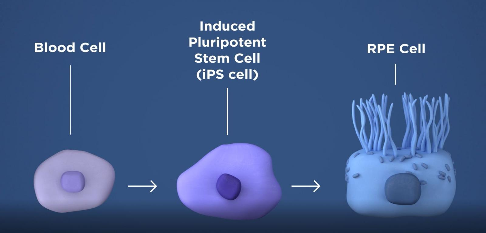 Blood cells are converted into induced pluripotent stem cells, which are them made into retinal pigment epithelial cells (RPE).