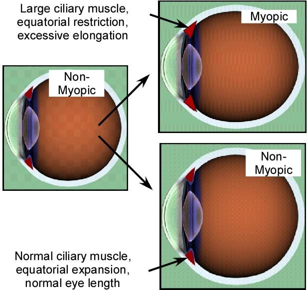 Diagram showing transition from non-myopic to myopic eye during growth, with large ciliary muscle and extra elongation