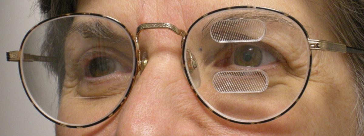 Man wearing glasses with prisms above and below one eye