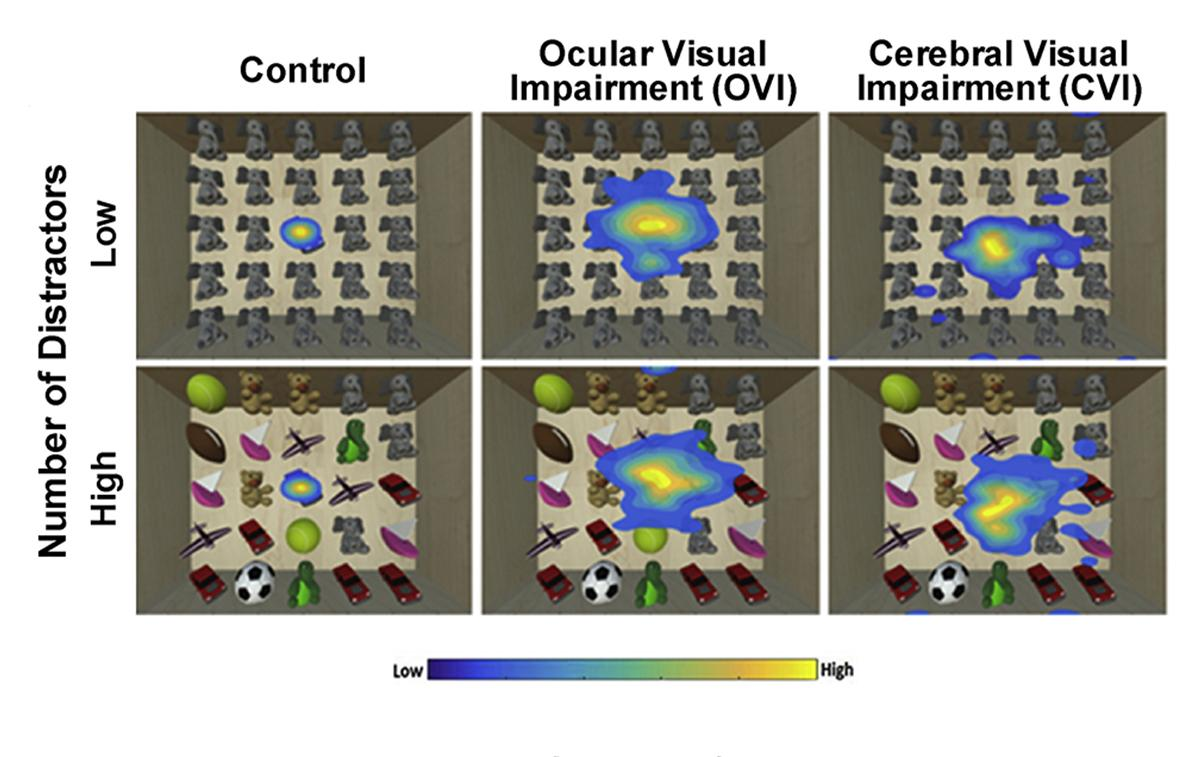It can be difficult to quantify functional vision deficits among people with CVI. This heat map shows visual search patterns for a virtual toy box task with yellow representing more time spent looking at an area and blue indicating less time. Note how in CVI the extent of visual area explored increases with greater task demand. Merabet hopes that such virtual reality (VR) based tools will help better assess functional vision impairments in CVI. 9