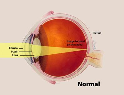 Eye diagram showing retina