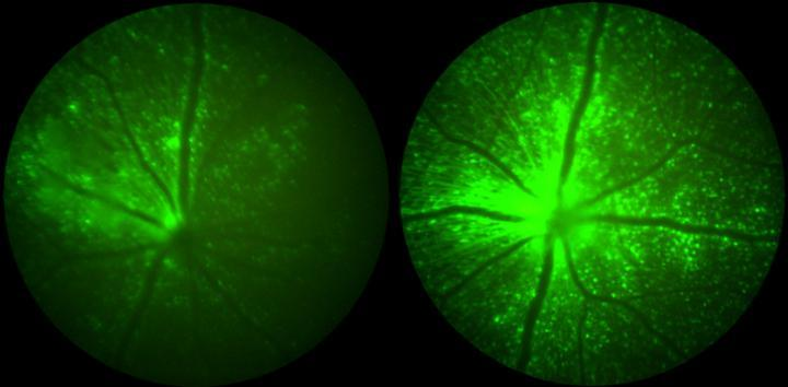 Retinas with lower (left) and higher (right) green fluorescence