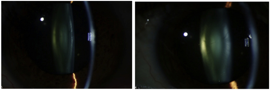 The level of alpha-crystallin in the eye declines as cataract progresses. Left: The eye of a patient with an early cataract. Right: After 20 months, the same eye has a clinically significant cataract. During that period, the level of alpha-crystallin decreased by more than 94 percent.