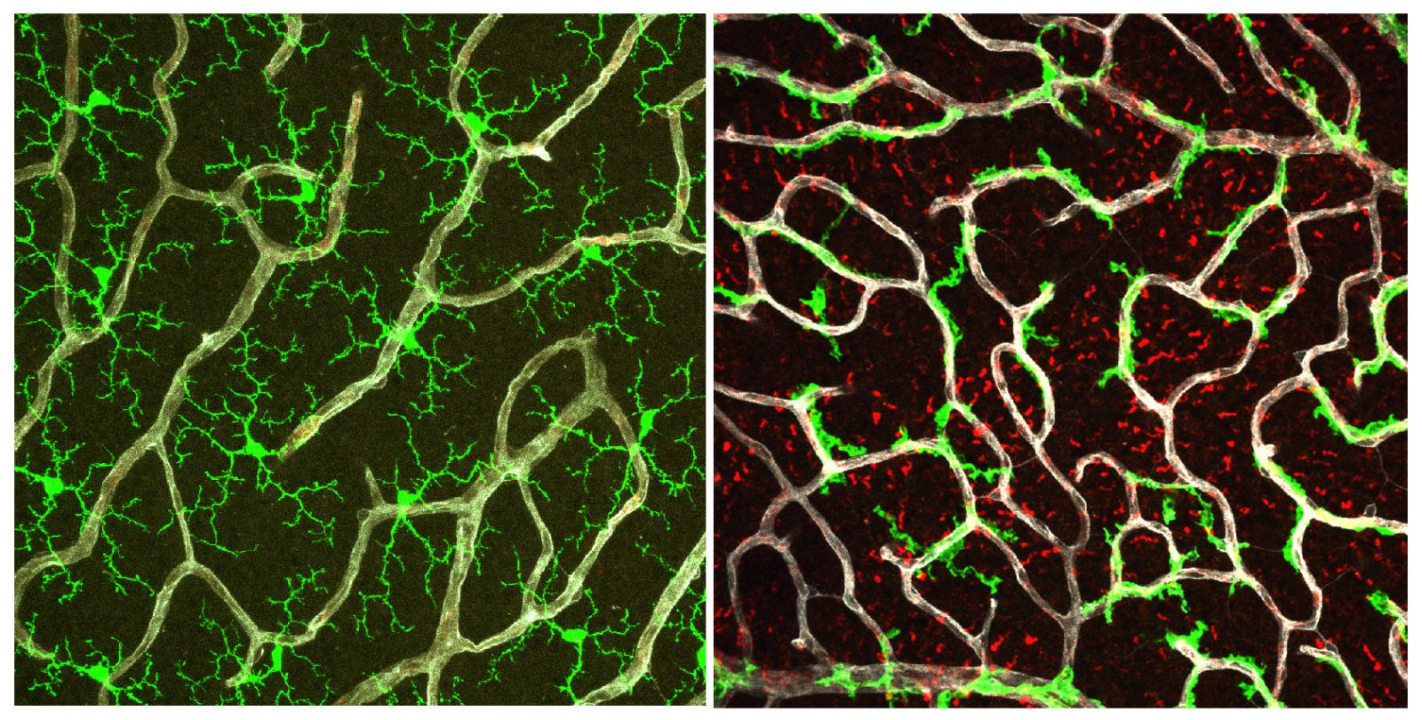 Split panel showing microglia and blood vessels in healthy retina or in retina without TGFβ signaling.