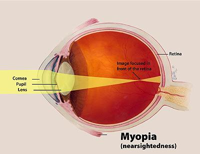 Diagram of myopic eye stretched front-to-back showing light focused in front of the retina
