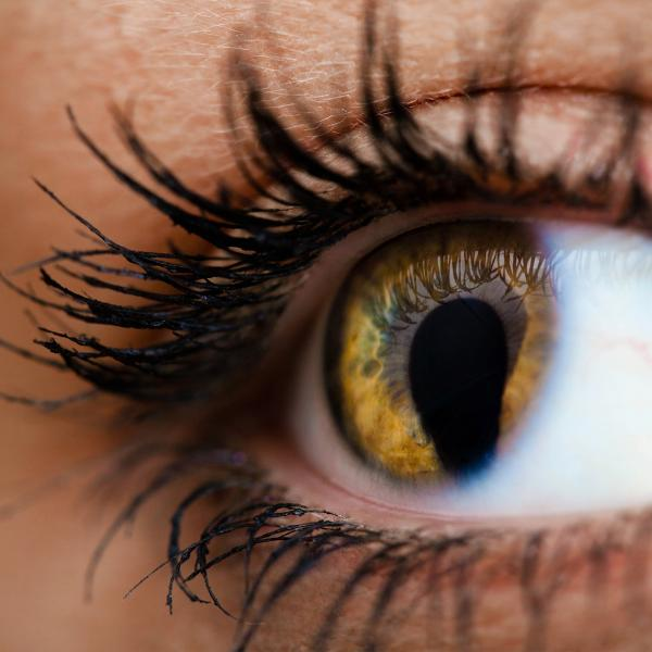 Close-up of an eye with coloboma
