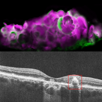 Images of dry AMD retina