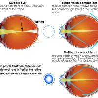 Multifocal contact lenses have two basic portions for focusing light. The center portion of the lens corrects nearsightedness so that distance vision is clear, and it focuses light directly on the retina. The outer portion of the lens adds focusing power to bring the peripheral light rays into focus in front of the retina. Animal studies show that bringing light to focus in front of the retina cues the eye to slow growth.