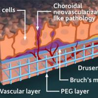 Retina model shows RPE cells, choroidal neovascularization-like pathology, vascular layer, PEG layer, Bruch's membrane, drusen
