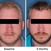 Side-by-side photos of trial participant before and after treatment