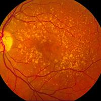 Fundus photograph of age-related macular degeneration showing drusen.