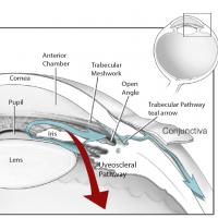 Aqueous humor flows out of the anterior chamber through the open angle where the cornea meets the iris. The open angle consists of two routes: the conventional, trabecular pathway, which includes a spongy layer called the trabecular meshwork, and the non-conventional, uveoscleral pathway, through the ciliary muscle that controls the eye's focusing mechanism. The majority of fluid flows out via the trabecular pathway, which acts like a one-way valve. About a third of the fluid exits through the uveoscleral p