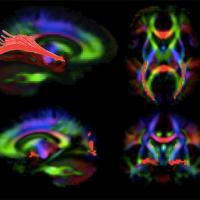 Images of the brain generated by diffusion tensor imaging, a type of MRI. The red highlights show visual pathways in the brain that deteriorate in patients with LCA, but appear to improve with gene therapy to the retina. Credit: Dr. Manzar Ashtari, University of Pennsylvania.